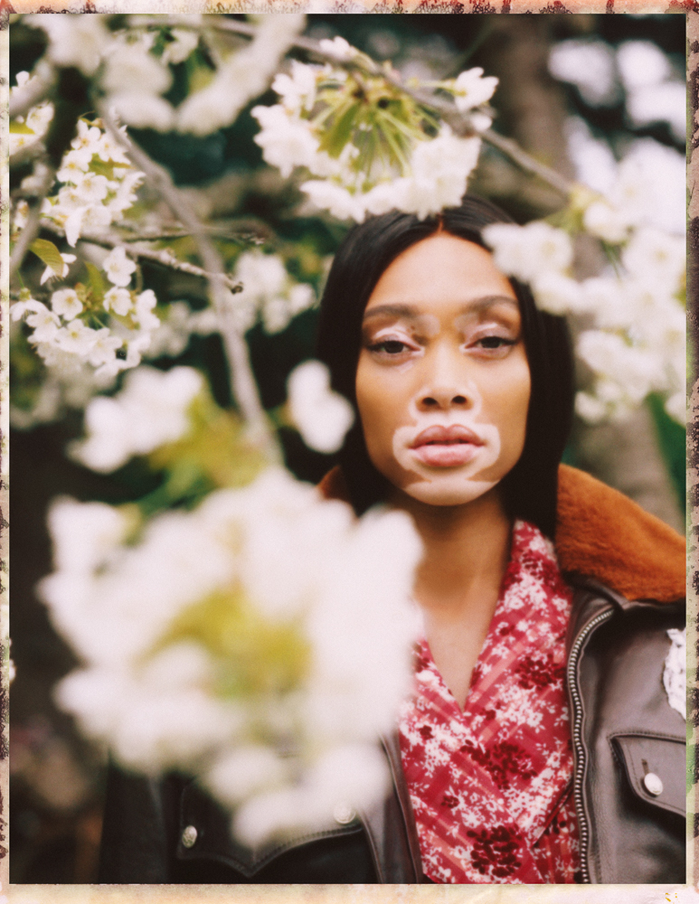 Winnie Harlow by Emily Soto for Vogue UA